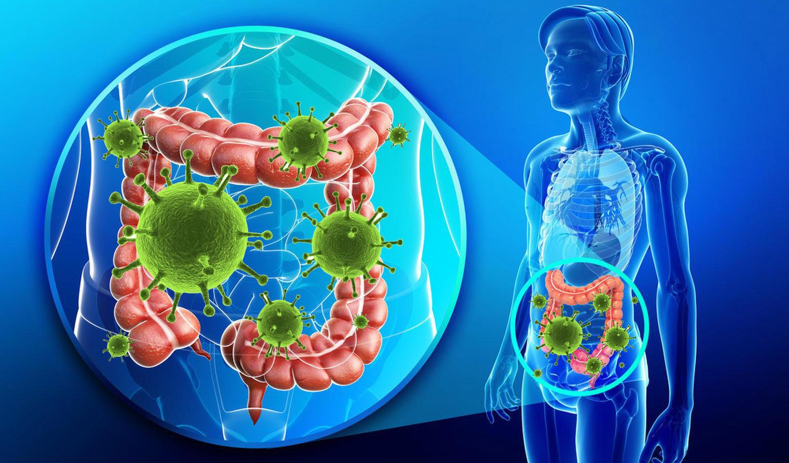 التهاب القولون التقرحي