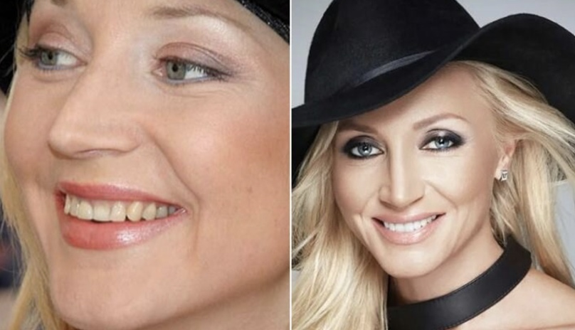 Какими были зубы знаменитостей до момента использования ими виниров