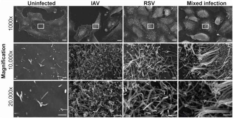 Британское исследование: что происходит при заражении клетки двумя очень разными респираторными вирусами